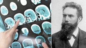 """Rentgen slaví: Geniální vynález nás """"svléká"""" už 123 let! Podívejte se, co všechno našel v lidském těle!"""