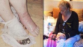 Maria (89) přežila holokaust, doktora málem ne. Amputoval jí špatnou nohu