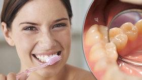 Myslíte, že si správně čistíte zuby? 6 otázek a odpovědí, které vás vyvedou z omylu!