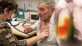 Na nemoc plic umírá stále více Čechů (ilustrační foto)