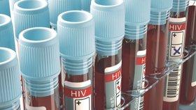 Nouzový stav zkomplikoval odhalování AIDS: Testů bylo málo, chybělo jich téměř 40 tisíc