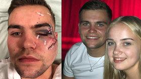 Mladík skončil v krvi. Agresor mu rozbil půllitr o obličej: Jedinou ranou mu takřka odřízl tvář!