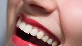 Co všechno může postihnout vaše zuby a jak to řešit