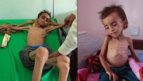 Smrt lepší než hlad. Zbídačení Jemenci se radši zabijí, než aby vyhladověli