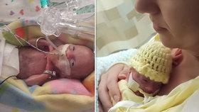 """""""Prosila jsem doktory, aby ji oživili."""" Dcera se jí narodila v 21. týdnu, měla 410 gramů"""