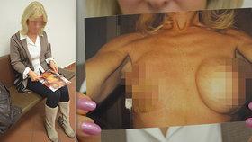Měla jsem mít prsa jak mladá holka, pláče Jaroslava (62) po zpackané plastické operaci