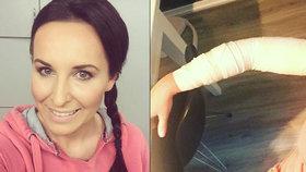 Moderátorka Šilhánová se zafačovanou rukou: Bolí to jako prase! Co se stalo?