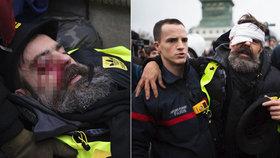 Červené šátky, žluté vesty a policejní děla: Vůdce protestů trefili v Paříži do oka