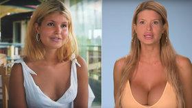 Tinu ničí její obří prsa: Udělejte mi korzet z prasečí kůže, vybalila na zděšené chirurgy
