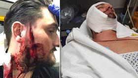 Při rvačce mladíka švihli páskem přes obličej. Řemen mu skoro uřízl tvář!