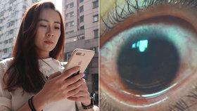 Mobil sekretářce zalil oči krví a vypálil do nich 500 děr. Teď varuje druhé