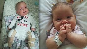 Michalka se narodila s rozštěpem páteře: Na nákladnou léčbu nejsou peníze