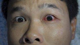 Muž se opil tak, že mu vypadlo oko z důlku. Lékař se zhrozil: Bylo venku šest hodin