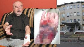 Tohle mi udělala sestřička! Pavel Nejedlý (73) si z nemocnice odnesl zhuntovanou ruku