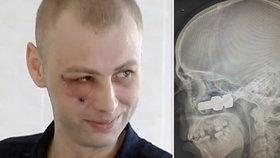 Náklaďák chodce těsně minul: Přesto se zhroutil v krvi a málem přišel o oko!
