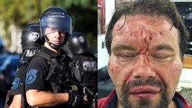 Pytel na hlavě, hlaveň před očima. Poláka brutálně zbila policie ve Venezuele