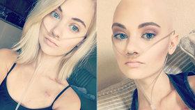 Lékaři třikrát přehlédli rakovinu: Kráska měla v plicích obří nádor!