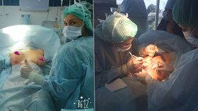 Děsivé zákroky na plastické klinice hrůzy: Pacientce udělali rybí ocas!