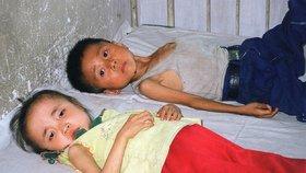 Zakrnělé děti a miliony podvyživených lidí: Do KLDR patrně zamíří potravinové balíčky