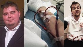 """Frantu (22) málem zabily nemocné ledviny. Trhala se mu kůže, smrti se """"vysmál"""""""