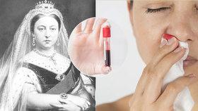 Nemoc, při níž hrozí vykrvácení: Jsou hemofilici potomky královny Viktorie? Odborníci řekli, jak to je!