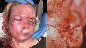 Ukousl expřítelkyni ucho a zbil ji do bezvědomí. Žena je na dně, muž za mřížemi