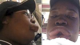 Nejsou pysky jako pysky! Dívka dostala alergickou reakci na hamburger, až jí šíleně natekly rty