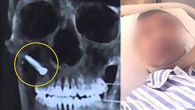 Muž se postřelil pistolí na hřebíky: Bolest je nezapomenutelná, tvrdí