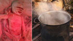 Ivan (2) spadl do hrnce s vařící vodou: Chlapeček bojuje o život!
