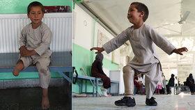 Chlapci (5) po zásahu kulkou amputovali nohu: Roztančil se štěstím, když dostal protézu