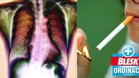 Rakovina plic ročně zabije 5400 Čechů! I proto, že zpočátku nebolí! Hrozí nemoc i vám?