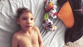 Aničku (3) trpící mikrocefalií chtěli odpojit od přístrojů. Přežila a pečují o ni doma