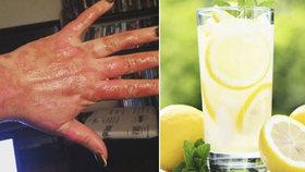 Ošklivé popálení, puchýře i mokvání kůže. Nespalte se v létě o citrony