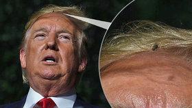 Projev Trumpa je hitem internetu. Místo slov zaujal lidi hmyzem ve vlasech