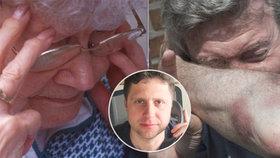Násilí na důchodcích? Většinou je brutálně týrá vlastní rodina, přiznal odborník