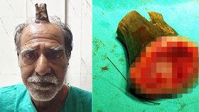 Muži vyrostl na hlavě 10centimetrový ďáblův roh! Ohyzdnost mu zkracoval holič
