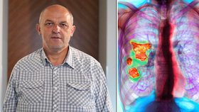 "Miloslav (61) má smrtelnou nemoc plic, zabila mu i bratra. ""Nic nepodceňujte,"" varuje"
