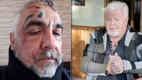 Zdrcený zpěvák Milan Drobný: Pád ze střechy!
