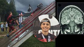Sondy v mozku, dráty v hlavě, bezvědomí! Sportovec Honza (18) bojuje se zákeřnou nemocí