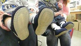 Švec Hanák a odborníci spojili síly: Boty z Brna snad zmírní u dětí problémy s vrozenou vadou