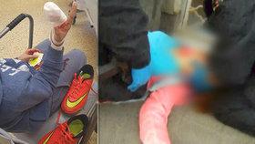Muž běhal po skateparku v Přerově a hledal utržený prst: Ztratil ho tam jeho syn!