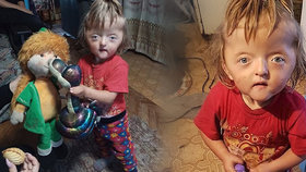 Školka odmítla nemocnou Sofinku (2): Prý by děsila ostatní děti!