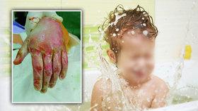 Bráška (5) chtěl umýt Mirečka (†2): Způsobil mu popáleniny na 70 % těla! Chlapeček zemřel
