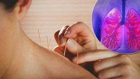 Propíchnutá plíce u akupunktury? Rizika jsou, ale je to bezpečné, říká lékař