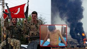 Děsivě popálené děti křičí o pomoc. Turci použili chemické zbraně, tvrdí Kurdové