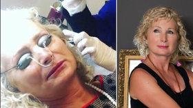 Světlana Nálepková (59): Bolestivý zákrok v obličeji! FOTO ze sálu