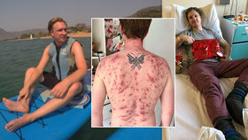 James málem zemřel kvůli parazitovi: Červ mu do těla vlezl penisem!