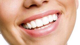 Jak na bílé zuby, se kterými zazáříte