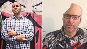 Rapperovi vybouchla domácí varna drog: Lékaři mu museli vzít třetinu lebky!