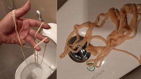 Zděšení na toaletě: Muž si z konečníku vytáhl desetimetrovou tasemnici!